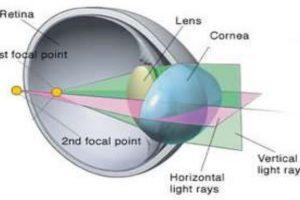 anatomy of astigmatism